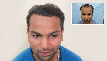 Dezire Hair Transplant Results