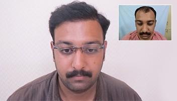 Hiar Transplant Delhi before after