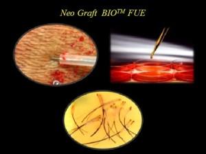 Bio fue hair transplants delhi