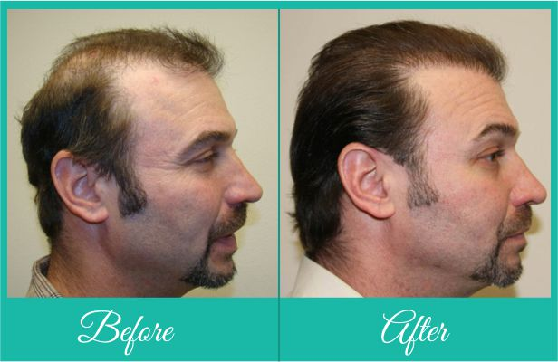 Male pattern baldness treatment