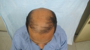 FUE Body Hair Transplant in Delhi - Transplant Hair from Body to Head