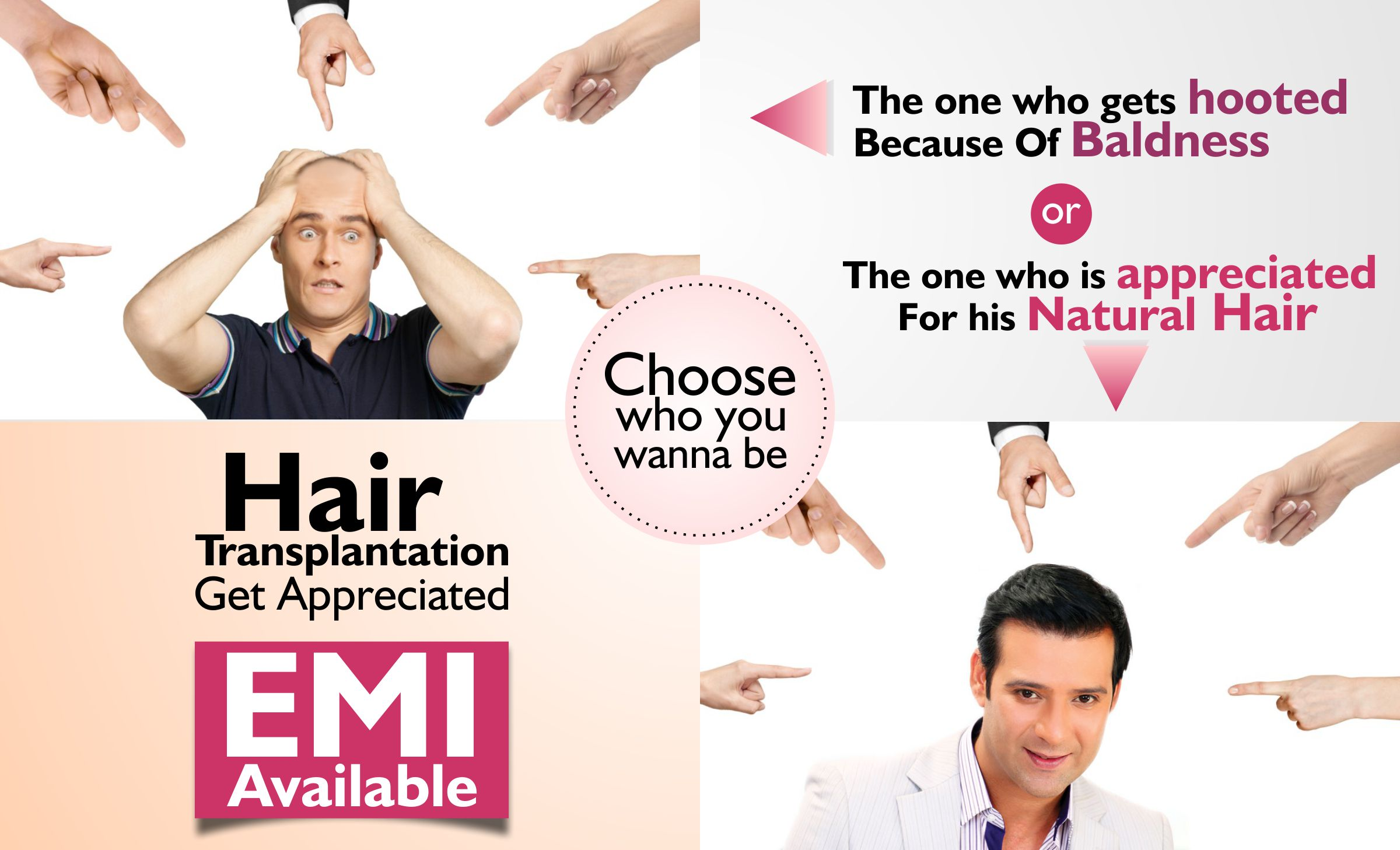 Hair Transplant Cost In Delhi Calculate The Cost Emi Of Fue Hair