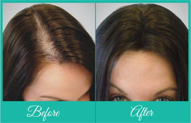 Female Hair Transplant Delhi
