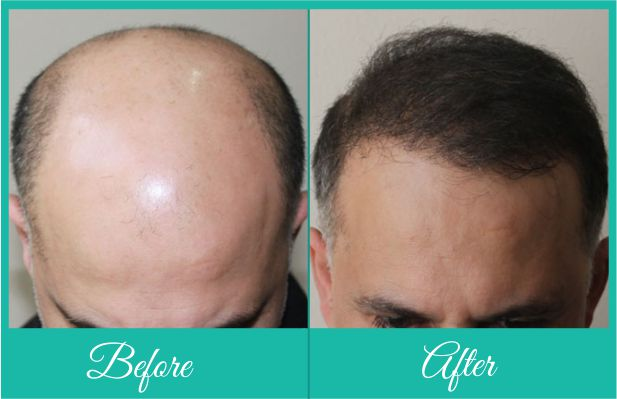 Hair transplant in delhi video