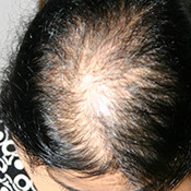 Female Hair Transplant Treatment in Delhi – Best Hair Implants for Women in Delhi | Hair Transplant For Female in Delhi, Hair Implants For Female in Delhi, Hair Restoration For Female in Delhi, Treatment For Hair Loss In Female in Delhi, Female Hair Transplant in Delhi, Female Hair Transplant in Delhi Dezire Clinic Delhi