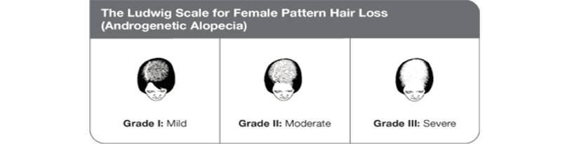 Female Baldness Grade