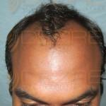 Hair Follicle Surgery
