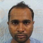Hair Implants Procedure