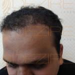 Hair Restoration Physician in Delhi