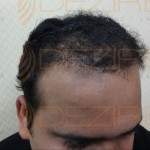 Hair Restoration Physician in India