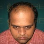 Hair Restoration Surgeon in Delhi