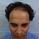 Hair Transplant Success