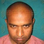 How Fee Hair Transplant