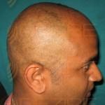 How money fut Hair Transplant