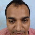Is Hair Transplant Effective