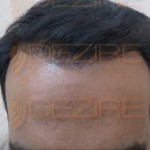 New Hair Transplant Techniques