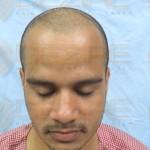 Transplanted Hair Growth