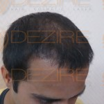 Transplanted Hair Growth permanent
