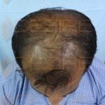 What Hair Transplant