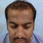 Where To Get Hair Transplant