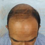 bald hair treatment at home