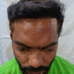 baldness cure naturally
