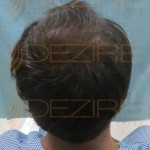 best doctor for hair transplant in india