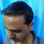 best hair transplant doctors in india