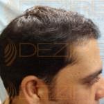 best hair transplant method in india