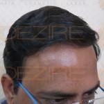 best hair transplant method in indiabest hair transplant method in india