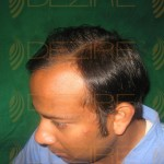best hair transplant results ever