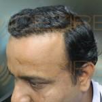 do hair transplants last forever