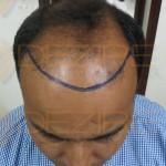 does reverse hair transplant