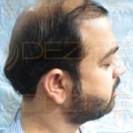 does stem cell hair restoration work