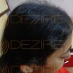 female hair regrowth success stories