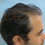 female hair transplant cost