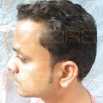 free hair transplant clinics