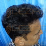 fut hair transplant surgery cost