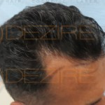 hair Fue, PRP grafting cost