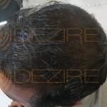 hair follicle regrowth