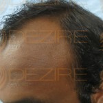 hair follicle replacement surgery