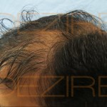 hair follicle transplant before and after
