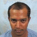 hair reconstructor vs protein treatmenthair reconstructor vs protein treatment