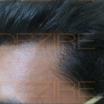 hair replacement reviews