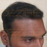 hair specialist in Delhi