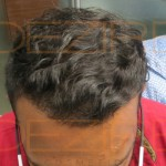 hair surgery cost