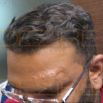hair surgery side effects