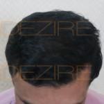 hair transplant 9-12 months