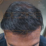 hair transplant Delhi reviews