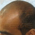 hair transplant Delhi reviews